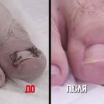 Лечение вросшего ногтя в телепрограмме (2018)