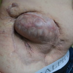 Surgical treatment of complex lateral hernia with large abdominal wall defect